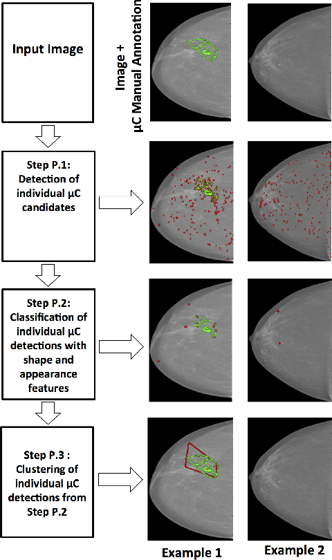 Figure 2 for Automated Detection of Individual Micro-calcifications from Mammograms using a Multi-stage Cascade Approach