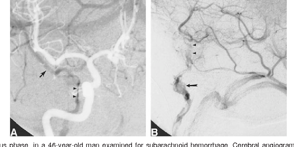 Figure 5 from Angiographic anatomy of the laterocavernous sinus ...