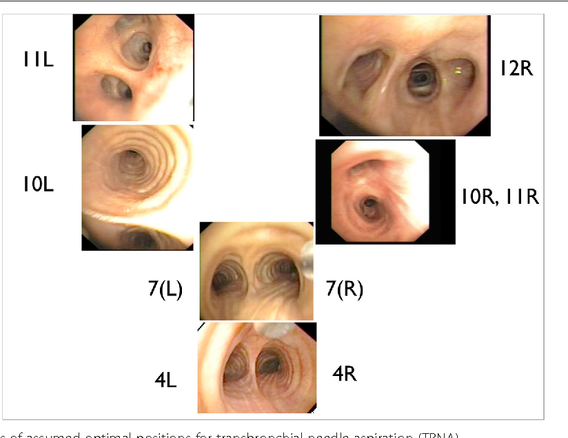 Expert opinion of mediastinal lymph node positions from an ...