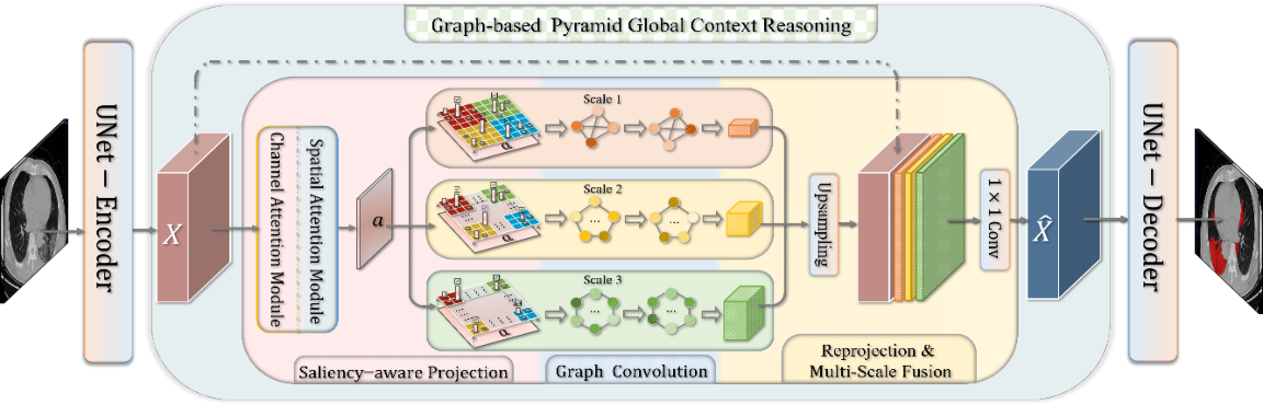 Figure 1 for Graph-based Pyramid Global Context Reasoning with a Saliency-aware Projection for COVID-19 Lung Infections Segmentation