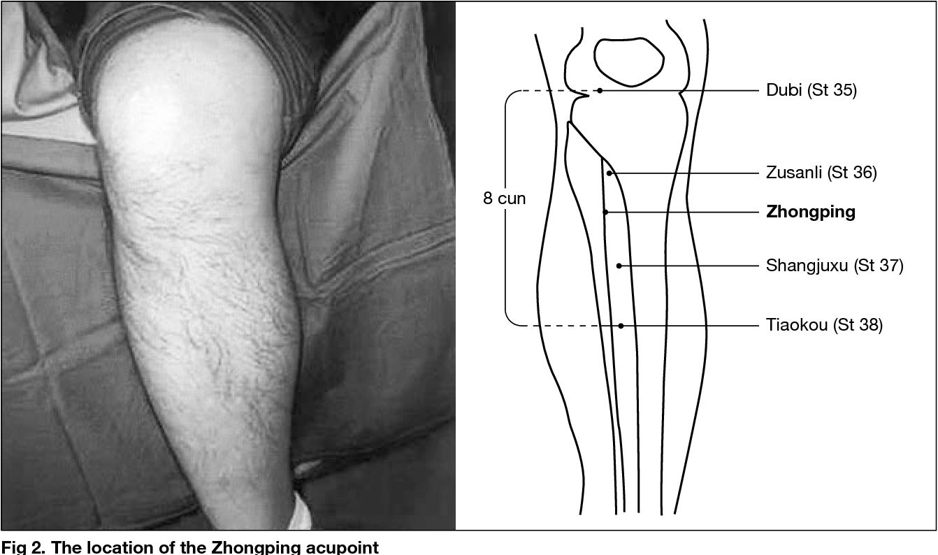 Figure 2 from Title Acupuncture for Frozen Shoulder ...