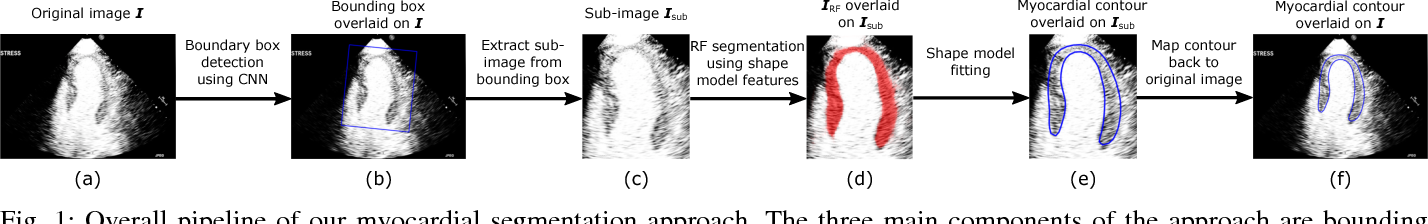 Figure 1 for Fully Automatic Myocardial Segmentation of Contrast Echocardiography Sequence Using Random Forests Guided by Shape Model