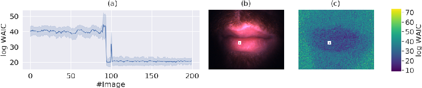Figure 4 for Out of distribution detection for intra-operative functional imaging