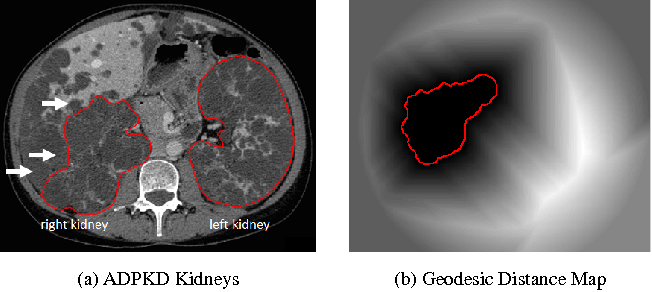 Figure 1 for Semi-Automatic Segmentation of Autosomal Dominant Polycystic Kidneys using Random Forests