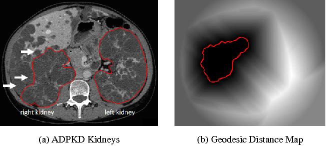 Figure 1 for Semi-Automatic Segmentation of Autosomal Dominant Polycystic Kidneys using Random Forests