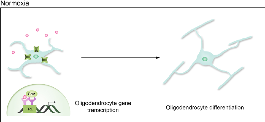 Fig. 3 Putative cellular hypothyroidism in oligodendrocytes during intrauterine growth restriction (IUGR) or inflammation-mediated hypoxia. Under normoxic conditions, internalized T3 binds to nuclear TRs to transcribe prodifferentiation genes, thereby mediating oligodendrocyte differentiation. However, under hypoxic conditions such as IUGR and inflammation, persistent HIF1α transcription induces Dio3 and along with a reduced expression of MCT8, results in cellular hypothyroidism. Furthermore, pro-inflammatory cytokines such as TNF-α, IL-1β, and IFN-γ may contribute to dysregulation of thyroid hormone signaling. Un-liganded TRs may repress pro-differentiation genes thereby resulting in stalled oligodendrocyte maturation