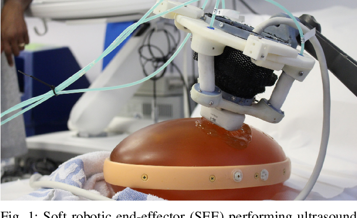 Figure 1 for Design and integration of a parallel, soft robotic end-effector for extracorporeal ultrasound