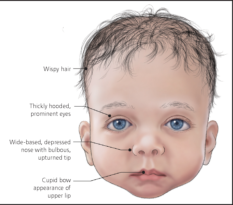 Figure 2 from Noonan syndrome. | Semantic Scholar