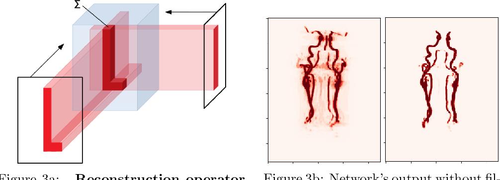 Figure 3 for Random 2.5D U-net for Fully 3D Segmentation