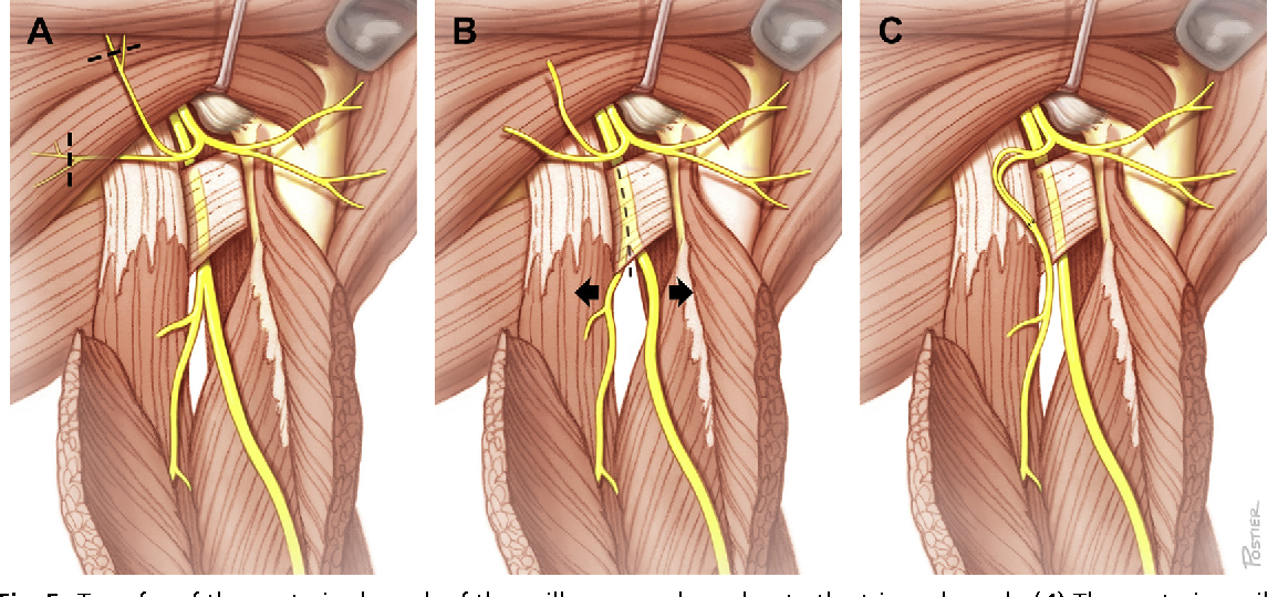 Figure 5 from Nerve Transfers to Restore Elbow Function. - Semantic ...