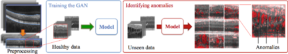 Figure 1 for Unsupervised Anomaly Detection with Generative Adversarial Networks to Guide Marker Discovery