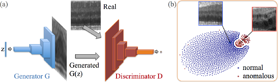 Figure 3 for Unsupervised Anomaly Detection with Generative Adversarial Networks to Guide Marker Discovery