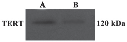Figure 2. The expression of TERT protein in brain tissue of rats. A, the con-