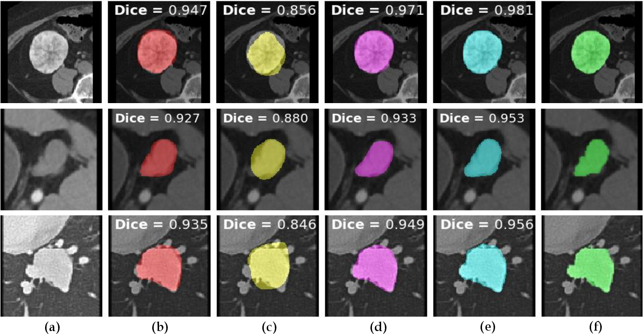 Figure 3 for Weakly-Supervised Lesion Segmentation on CT Scans using Co-Segmentation