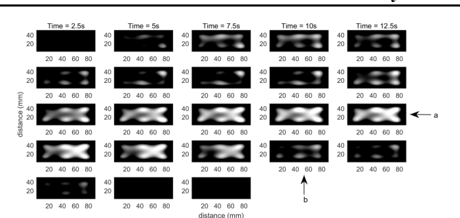 Figure 2 for Bayesian Belief Updating of Spatiotemporal Seizure Dynamics