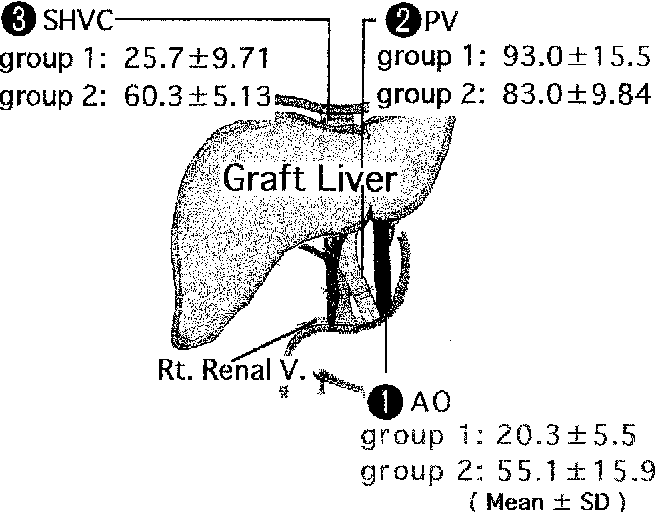 Fig. 3. Serum ET-1 levels at the three different vascular locations, namely, (1) the aorta (AO), (2) portal vein (PV), and (3) supra hepatic vena cava (SHVC), were evaluated in groups 1 and 2