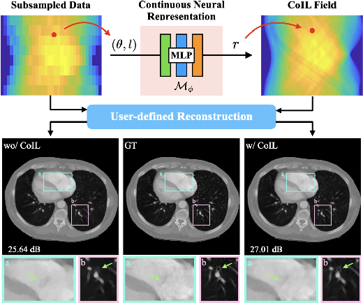 Figure 1 for CoIL: Coordinate-based Internal Learning for Imaging Inverse Problems
