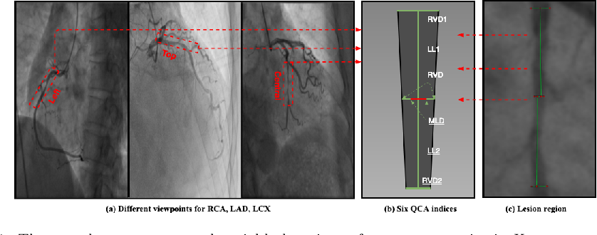 Figure 1 for Direct Quantification for Coronary Artery Stenosis Using Multiview Learning