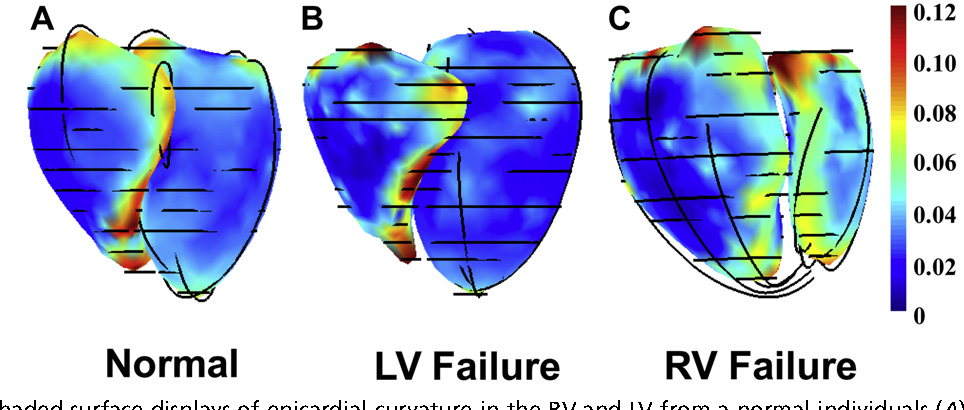 Figure 1 From Anatomy And Physiology Of The Right Ventricle