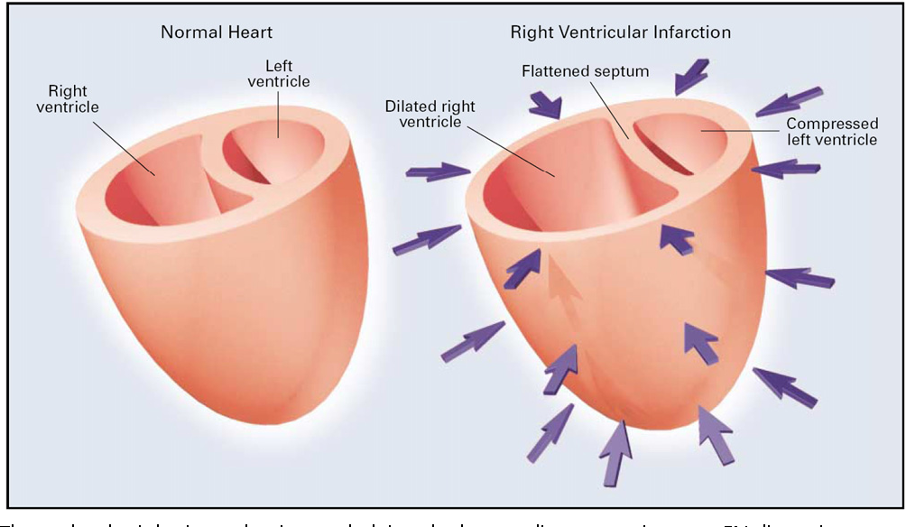 Anatomy and physiology of the right ventricle. - Semantic Scholar