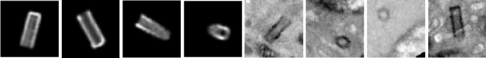 Figure 3 for Synthetic patches, real images: screening for centrosome aberrations in EM images of human cancer cells