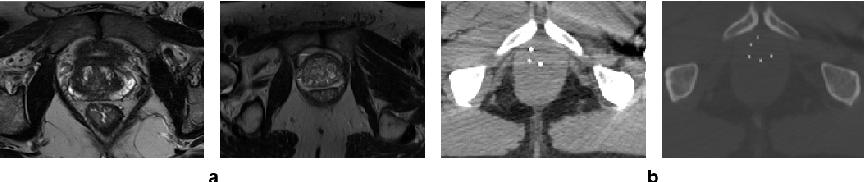 Figure 1 for Deep generative model-driven multimodal prostate segmentation in radiotherapy