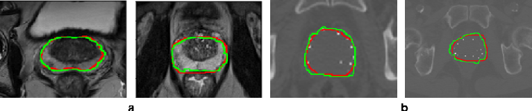 Figure 4 for Deep generative model-driven multimodal prostate segmentation in radiotherapy