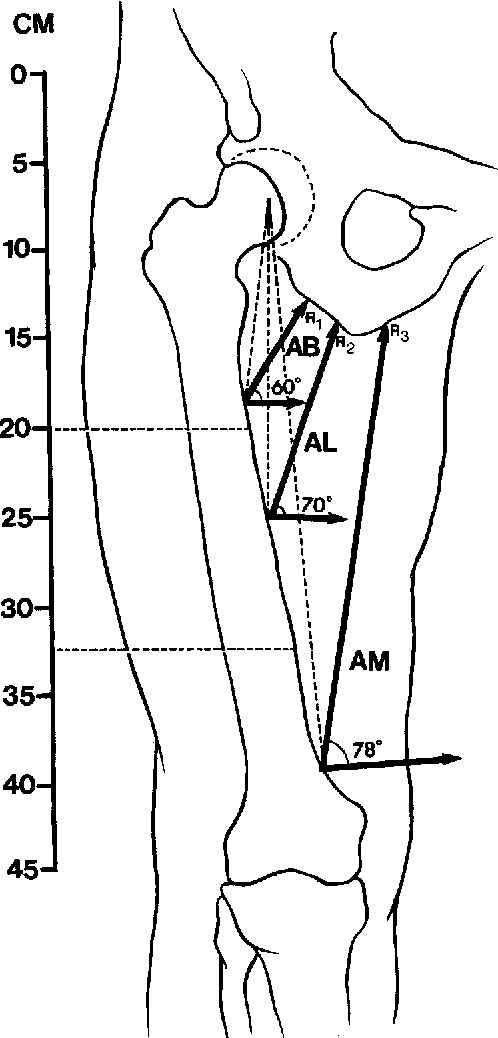 Table 1 from Transfemoral amputation  Biomechanics and