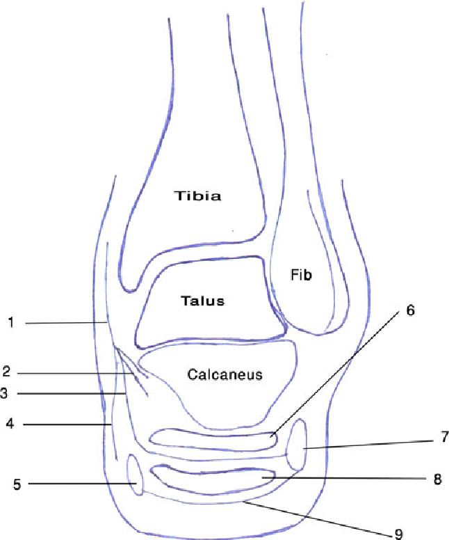 Chronic Heel Pain Due To The Entrapment Of The First Branch Of The