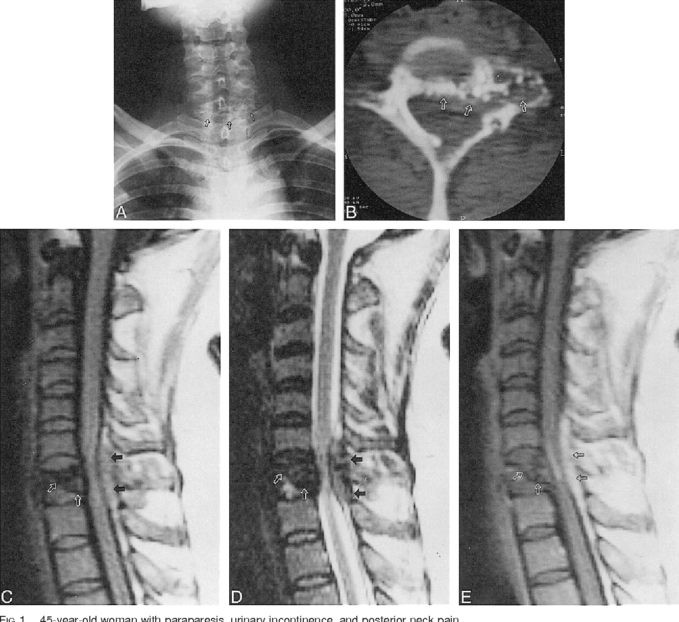 Figure 1 from Primary amyloidoma of the cervical spine. - Semantic ...