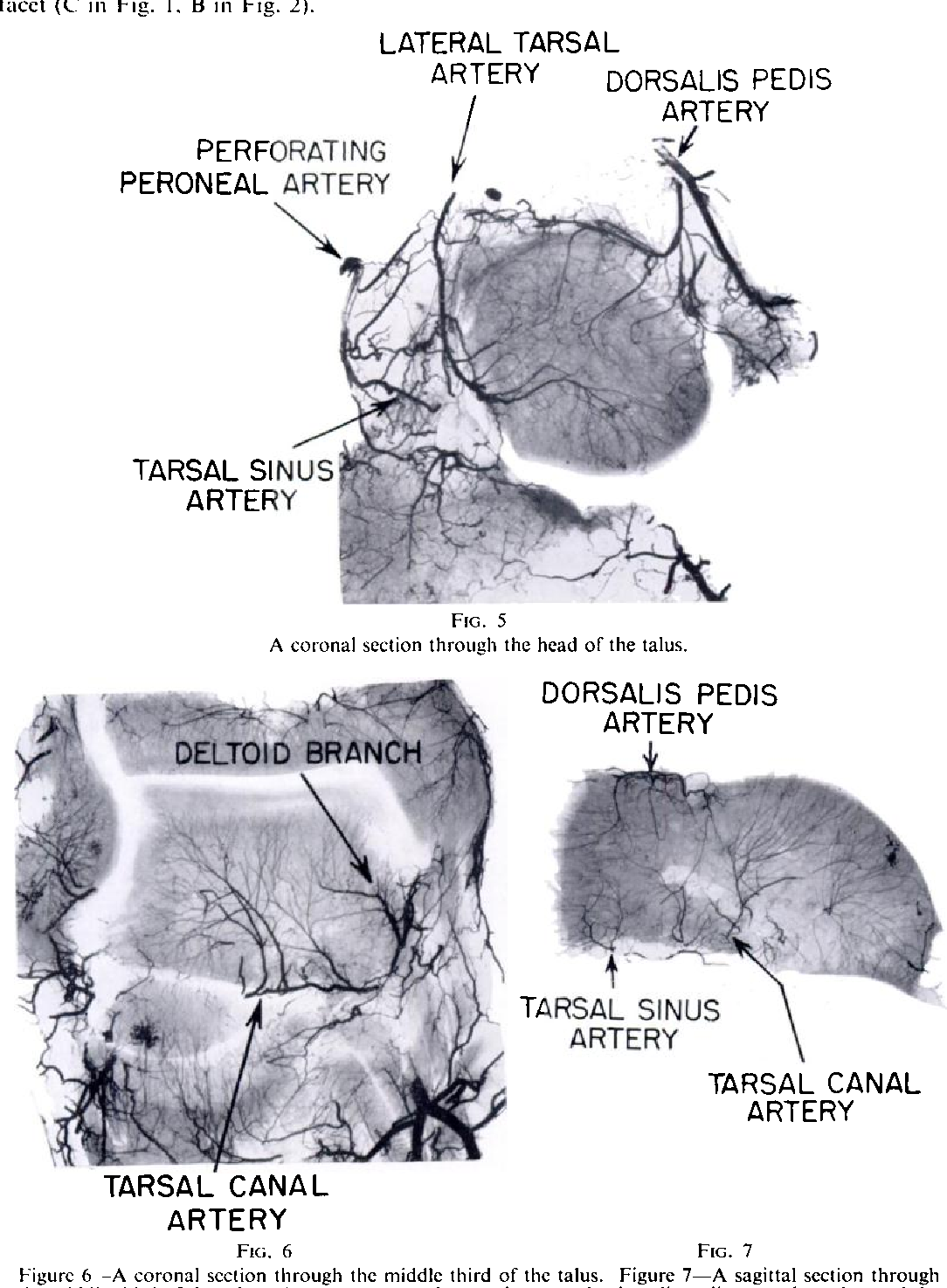 Figure 6 from The blood supply of the talus. - Semantic Scholar