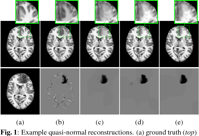 Figure 1 for Efficient Registration of Pathological Images: A Joint PCA/Image-Reconstruction Approach