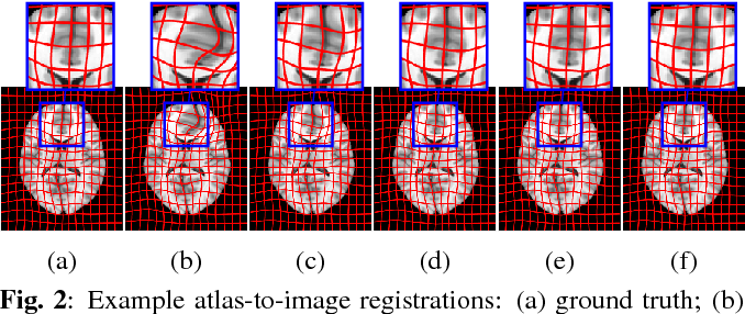 Figure 2 for Efficient Registration of Pathological Images: A Joint PCA/Image-Reconstruction Approach
