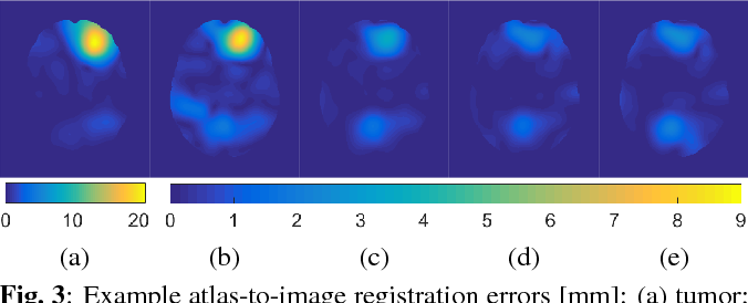 Figure 3 for Efficient Registration of Pathological Images: A Joint PCA/Image-Reconstruction Approach