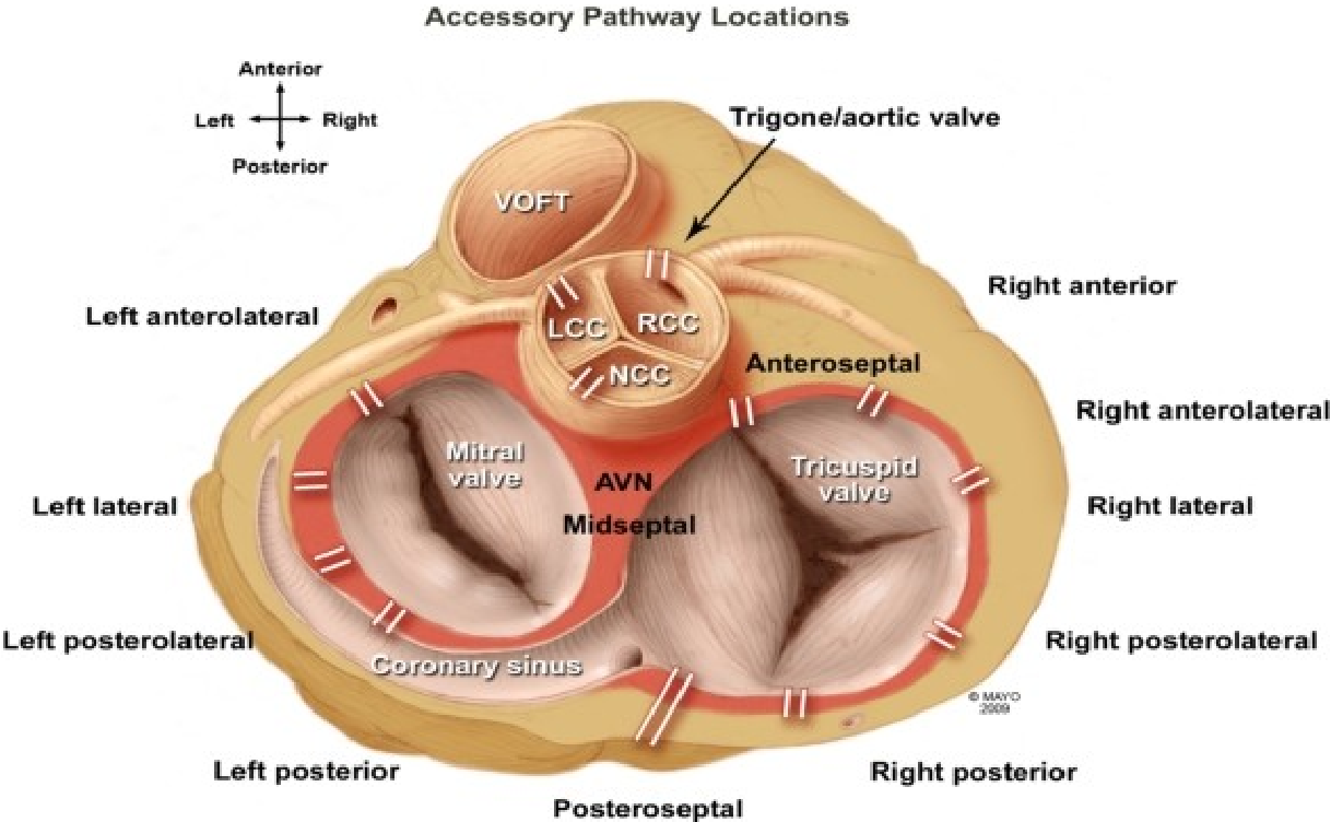 Septal Accessory Pathway: Anatomy, Causes for Difficulty, and an ...