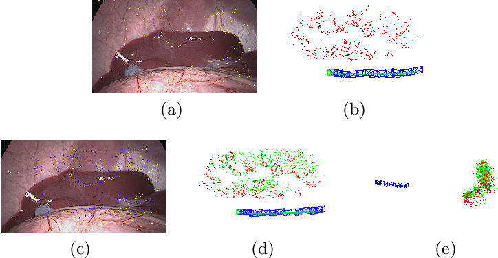 Figure 1 for ORBSLAM-based Endoscope Tracking and 3D Reconstruction
