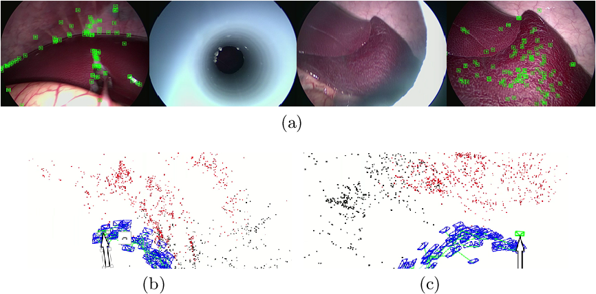 Figure 3 for ORBSLAM-based Endoscope Tracking and 3D Reconstruction