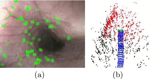 Figure 4 for ORBSLAM-based Endoscope Tracking and 3D Reconstruction