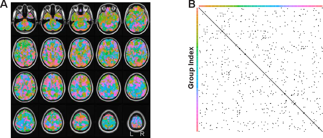 Figure 2 for A Hierarchical Graphical Model for Big Inverse Covariance Estimation with an Application to fMRI