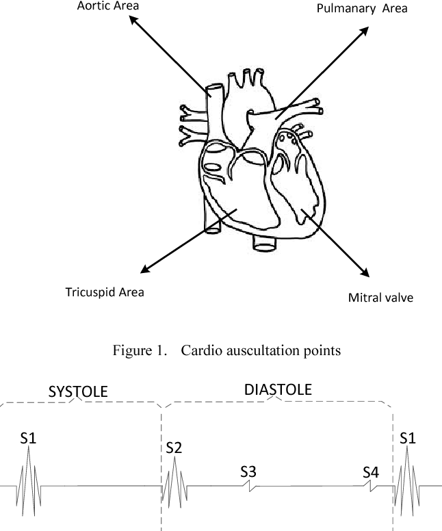 Detection Of Cardio Auscultation Using Mems Microphone