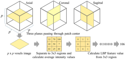 Figure 3 for 3D FCN Feature Driven Regression Forest-Based Pancreas Localization and Segmentation