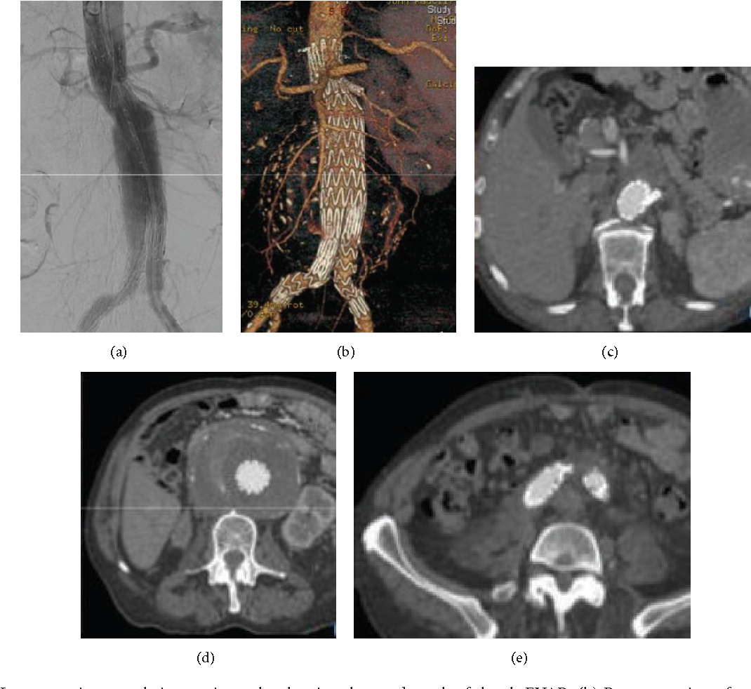 Figure 3: (a) Intraoperative completion angiography showing the good result of the ch-EVAR. (b) Reconstruction of postoperative CTA. Axial views of the postoperative CTA at the level of the origin of the left renal artery (c), mid-aneurysm (d), and bilateral common iliac arteries (e).
