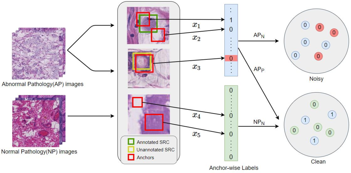 Figure 3 for Decoupled Gradient Harmonized Detector for Partial Annotation: Application to Signet Ring Cell Detection