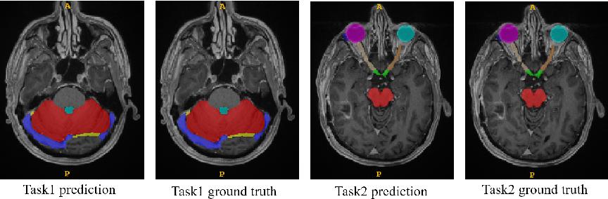 Figure 3 for Ensembled ResUnet for Anatomical Brain Barriers Segmentation