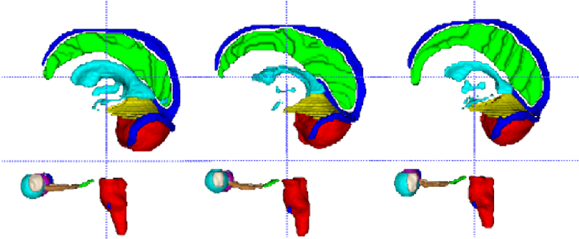 Figure 4 for Ensembled ResUnet for Anatomical Brain Barriers Segmentation