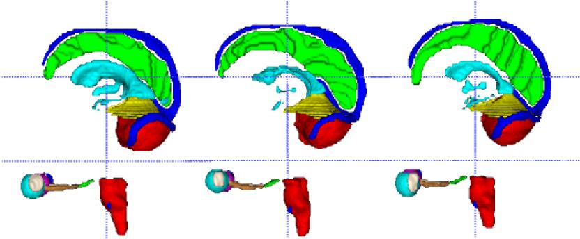 Figure 4 for Ensembled ResUnet for Anatomical Brain Barriers Segmentation