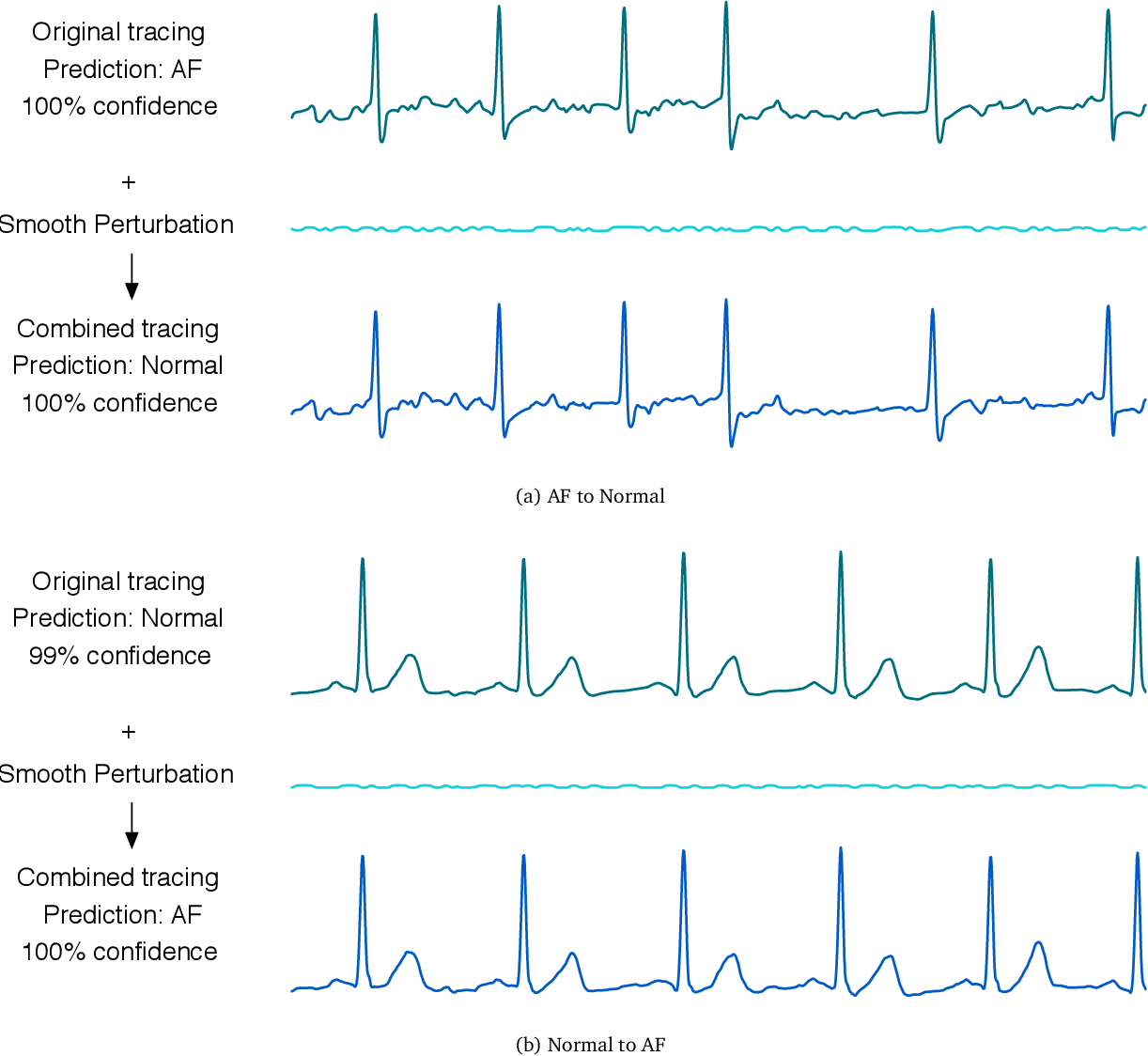 Figure 1 for Adversarial Examples for Electrocardiograms