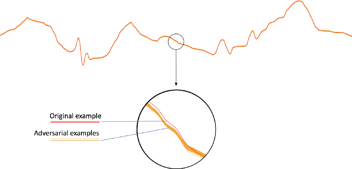 Figure 4 for Adversarial Examples for Electrocardiograms