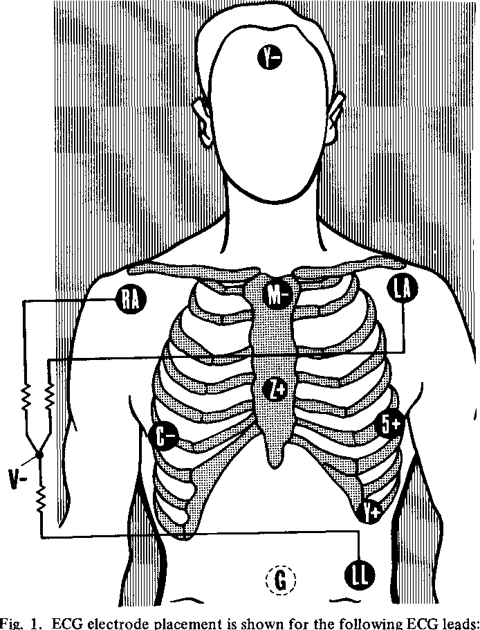 T Waves In The Exercise Ecg Their Location And Occurrence