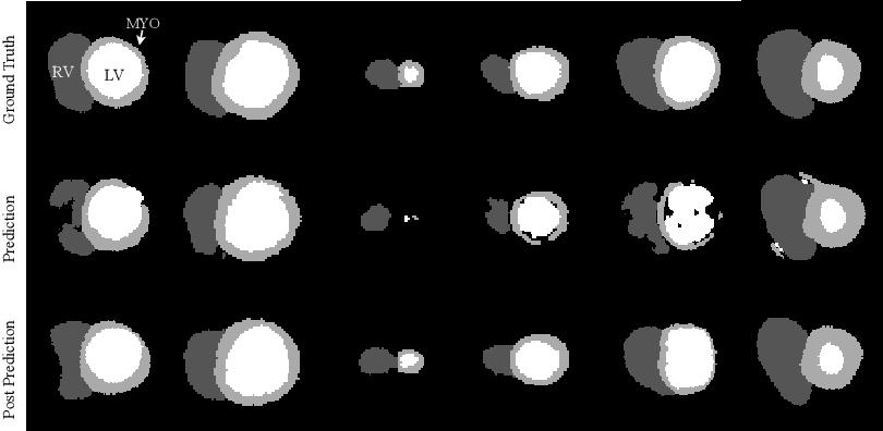 Figure 2 for Cardiac MRI Segmentation with Strong Anatomical Guarantees